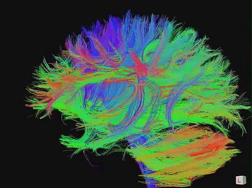 Dieci modi per mantenere giovane il cervello