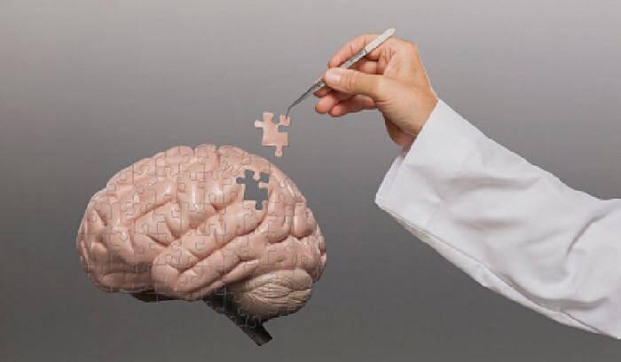 puzzle-cervello
