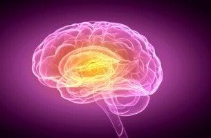Cervello anosognosia