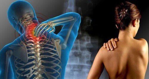 dolore-fibromialgia