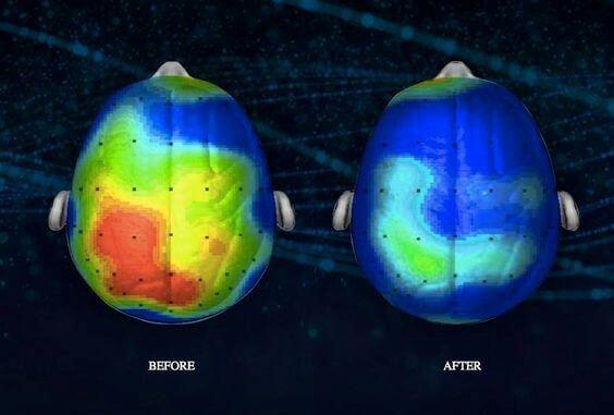 cervello-prima-e-dopo-la-meditazione