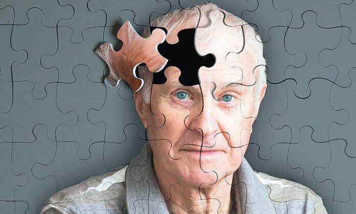 5 sintomi che precedono l'Alzheimer