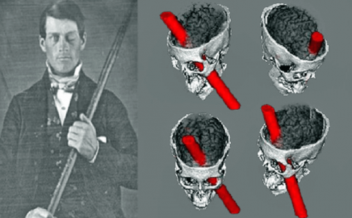 Incidente Phineas Gage