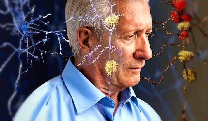 Anziano con Alzheimer