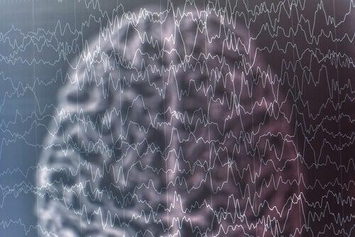 Cervello e sindrome di Lennox-Gastaut