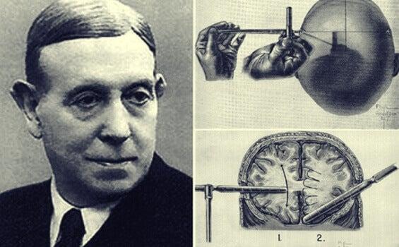 Egas Moniz e la tremenda storia della lobotomia