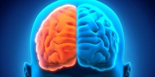 Emisferi cerebrali colorati