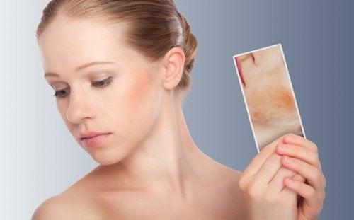 Ragazza con dermatite allo specchio