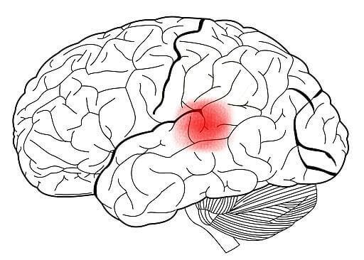 Cervello area di Wernicke