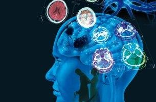 Cervello persona sclerosi multipla