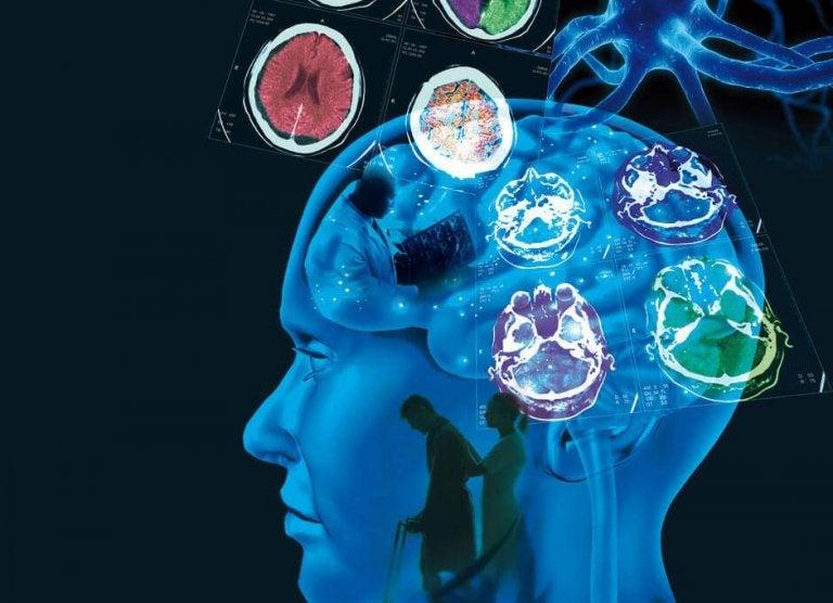 Sclerosi multipla: sintomi e trattamento
