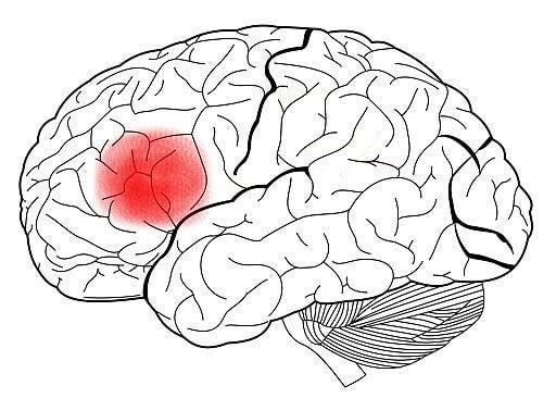 Area di Broca nel cervello