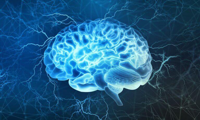 Tsunami cerebrale