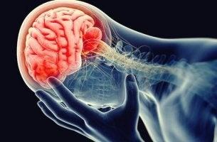 La neuroinfiammazione o infiammazione da depressione