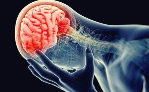 Cervello infiammato