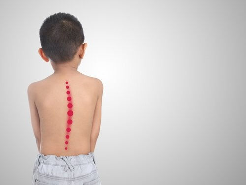 Prevenire la scoliosi  4 utili esercizi – La Mente è Meravigliosa 457f37b6ff79