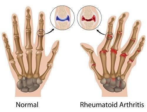 Confronto mano normale o con artrite reumatoide
