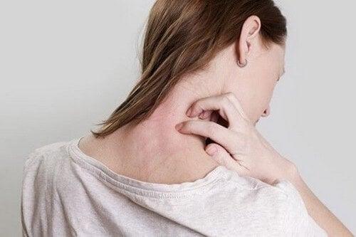 Donna con eczema