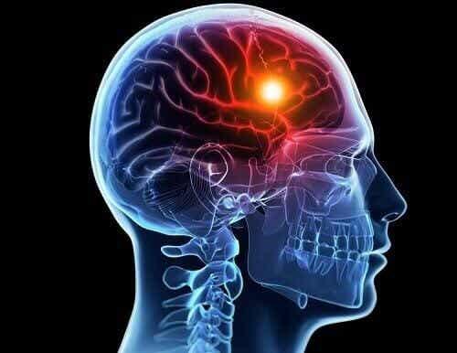Accidenti cerebrovascolari: cause e tipi