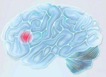 cervello con punto rosso a rappresentare l'ictus