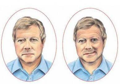 Viso normale e viso colpito da ictus a confronto