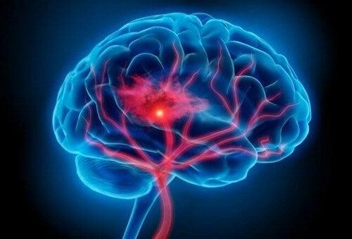 Sindrome serotoninergica: sintomi e trattamento
