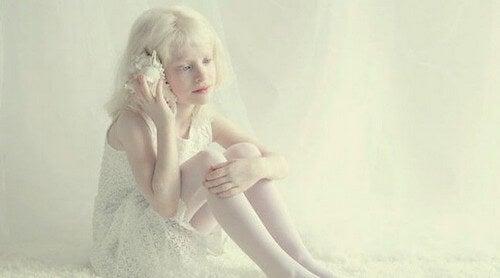 Bambina albina