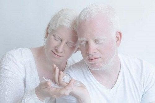 Persone albine