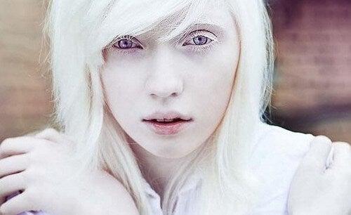 Persone albine, oltre l'aspetto fisico