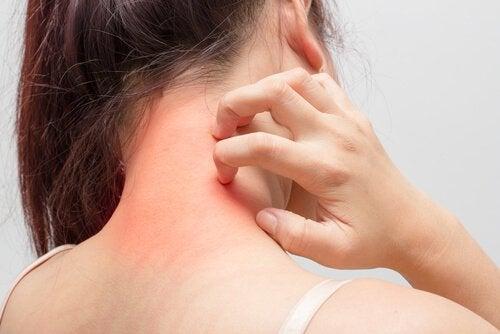 Ragazza con dermatite atopica sul collo