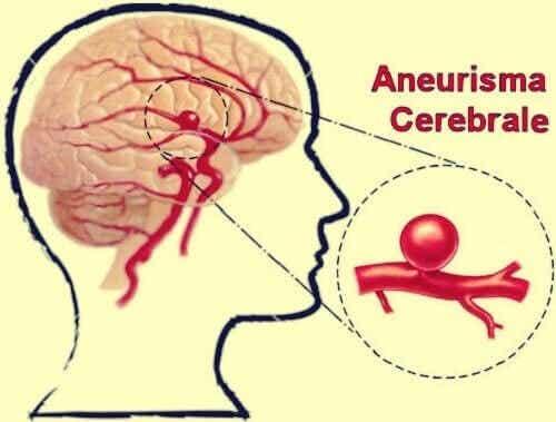 Aneurisma cerebrale: definizione, sintomi, trattamenti