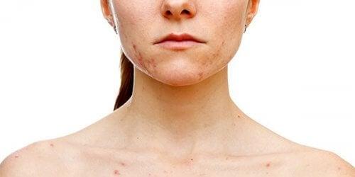 Ragazza con acne diffusa sul viso a causa della sindrome dell'ovaio policistico