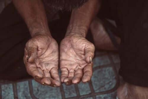Mani sporche di una persona povera
