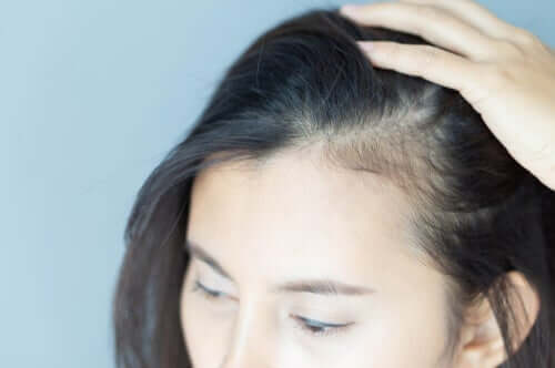 Alopecia femminile e ripercussioni psicologiche