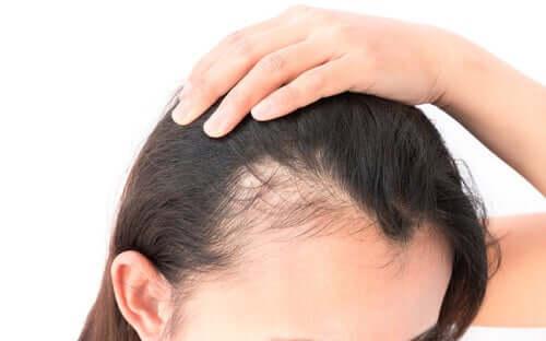 Donna con alopecia