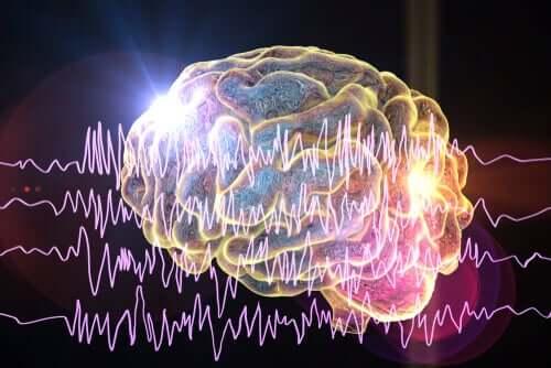 Cervello in crisi epilettica