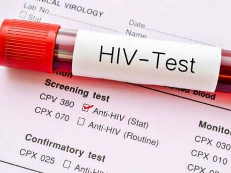 Test dell'hiv.