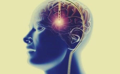 Sistema di ricompensa del cervello