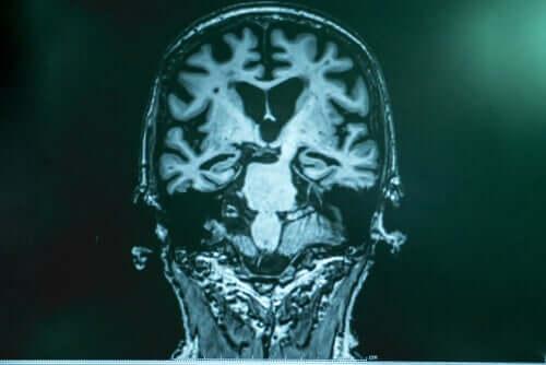Tac al cervello