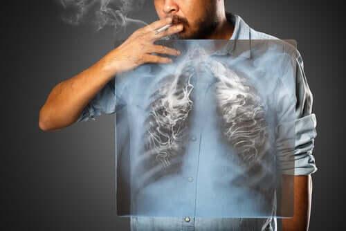Fumatore e radiografia dei polmoni
