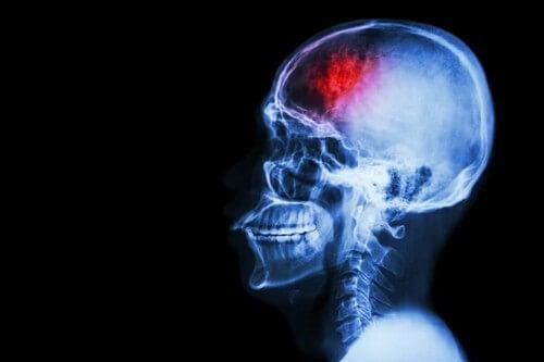 Danno cerebrale e conseguenze fisiche.