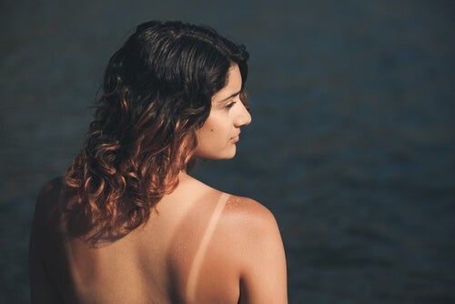 Donna con scottatura solare.