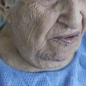 Paralisi facciale e conseguenze sociali