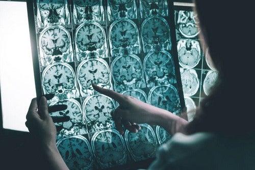 Onde gamma contro l'Alzheimer