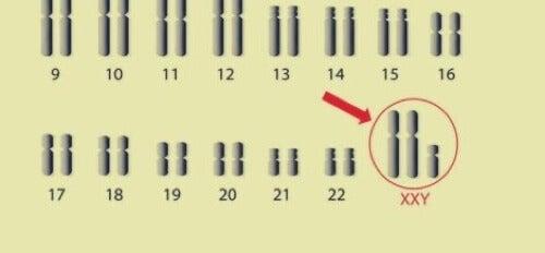 Anomalia dei cromosomi sessuali.