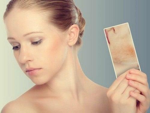 Macchie da stress: reazioni della pelle alle emozioni