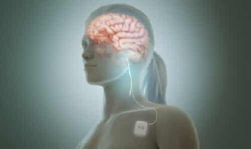Stimolazione del nervo vago per calmare i sintomi della depressione