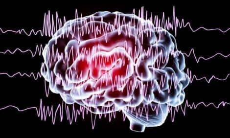 Cervello con crisi epilettica.