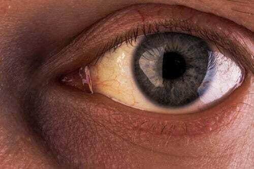 La sindrome di Gilbert: comune ma poco conosciuta