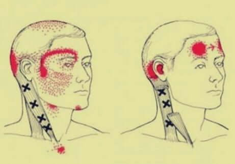 Cefalea cervicogenica, teste e tipi di mal di testa.